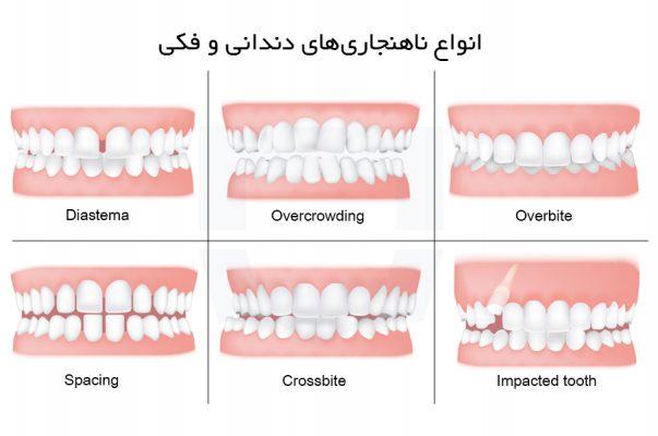 انواع ناهنجاری های دندانی و فکی